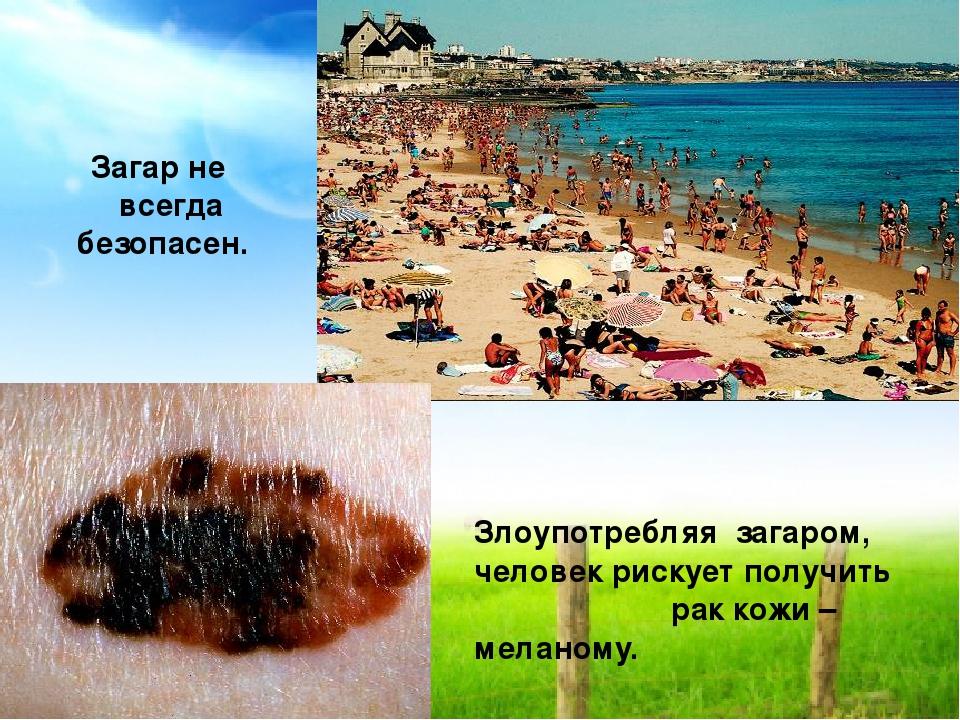 Злоупотребляя загаром, человек рискует получить рак кожи – меланому. Загар н...
