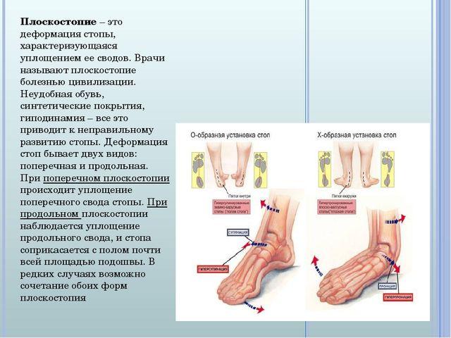 Плоскостопие – это деформация стопы, характеризующаяся уплощением ее сводов....