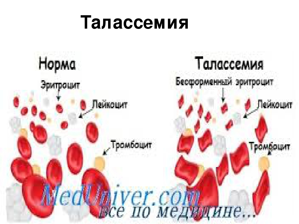 thalasemia Disease thalassemia is a genetic blood disease people born with this disease cannot make normal hemoglobin which is needed to produce healthy red blood cells.