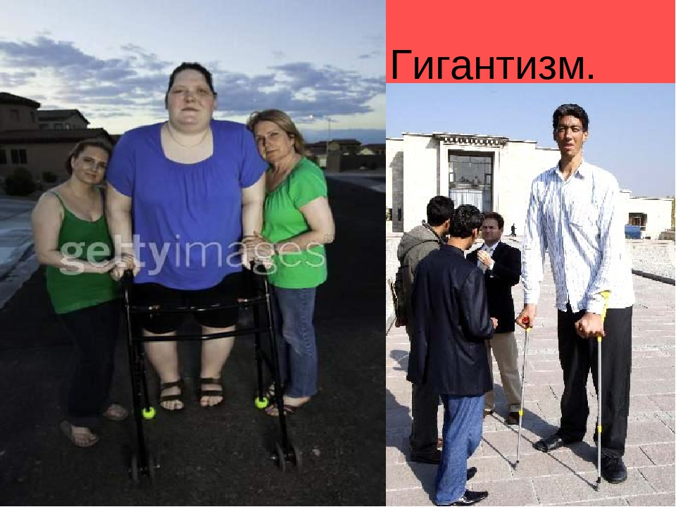 gigantism Gigantism is a rare condition of accelerated growth and increased height as a result of too much growth hormone secretion during childhood or adolescence it is almost always the result of a growth hormone secreting pituitary tumour.