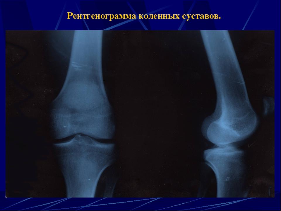 рентген суставов в ставрополе