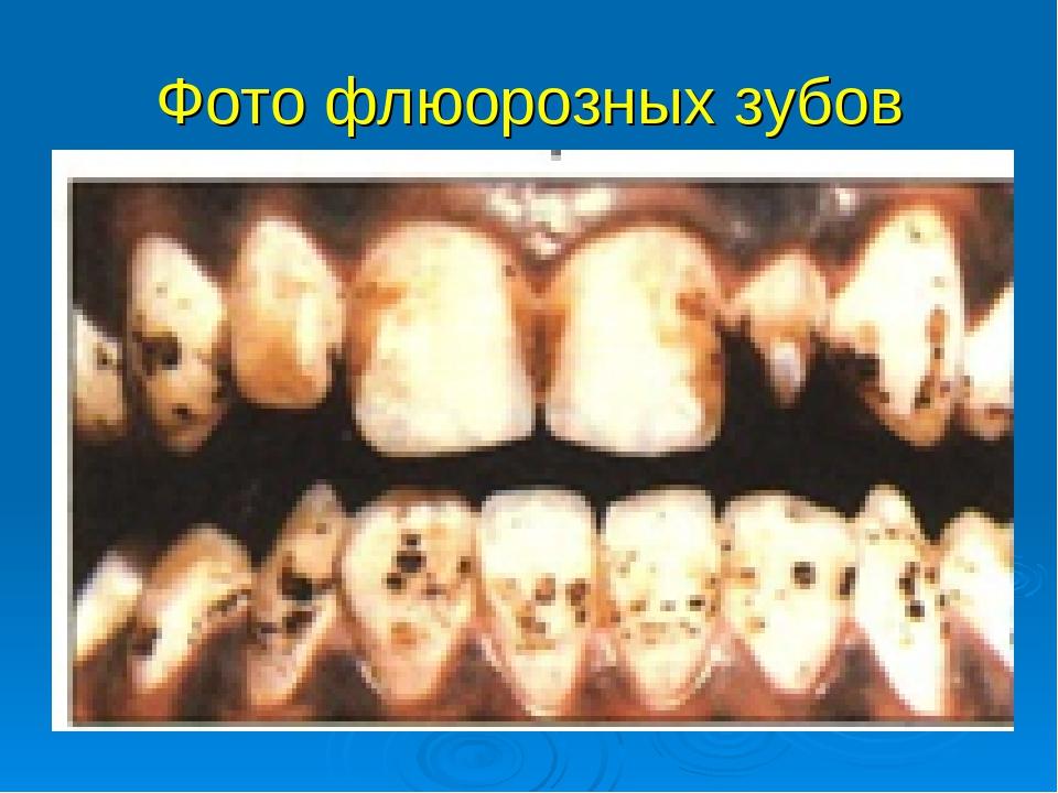 Фото флюорозных зубов