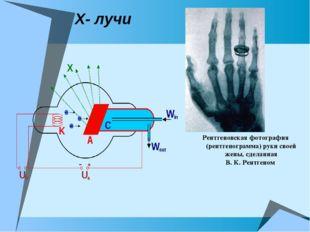 Х- лучи Рентгеновская фотография (рентгенограмма) руки своей жены, сделанная