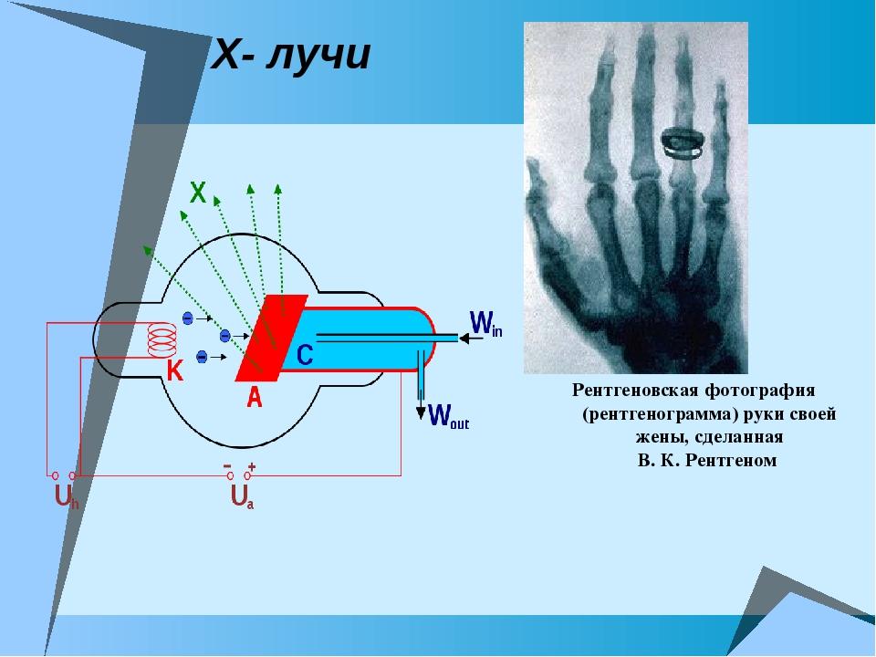Х- лучи Рентгеновская фотография (рентгенограмма) руки своей жены, сделанная...