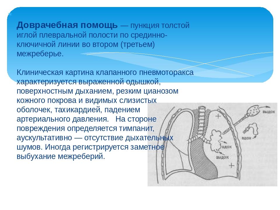 Доврачебная помощь — пункция толстой иглой плевральной полости по срединно-к...