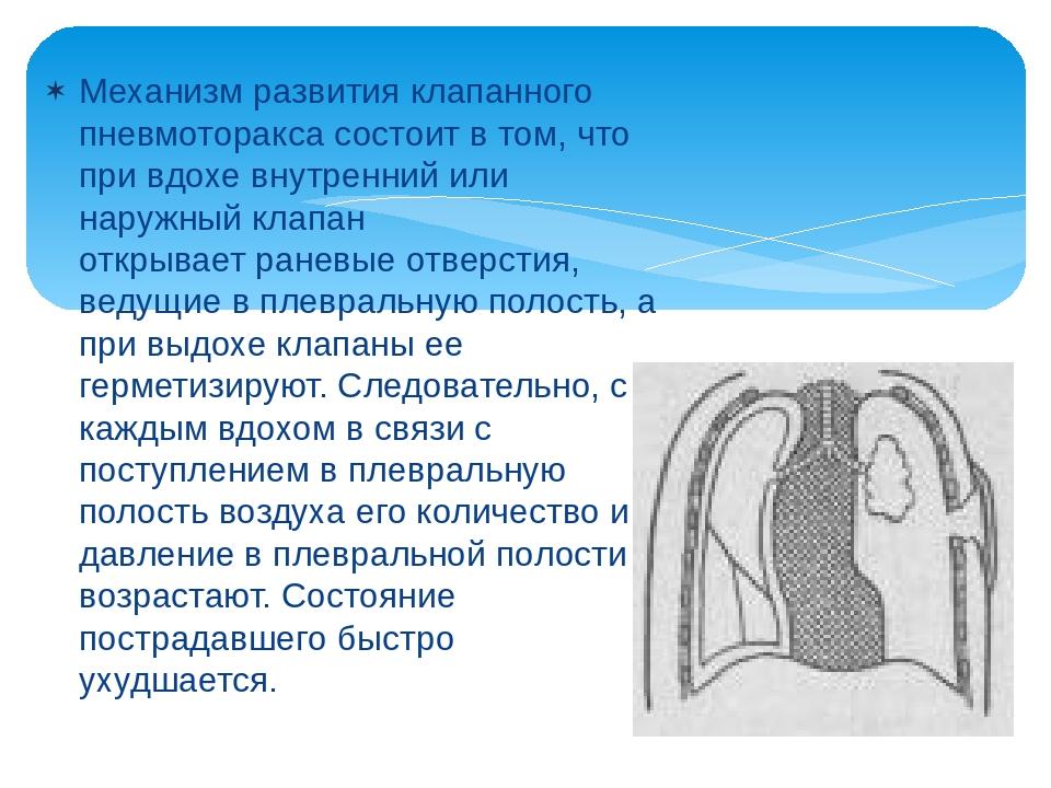 Механизм развития клапанного пневмоторакса состоит в том, что при вдохе внутр...