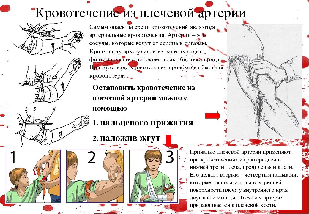 Кровотечение из плечевой артерии Прижатие плечевой артерии применяют при кр...