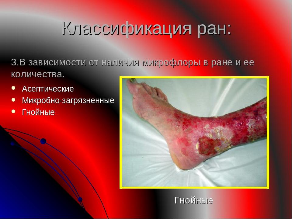 Классификация ран: Асептические Микробно-загрязненные Гнойные 3.В зависимости...