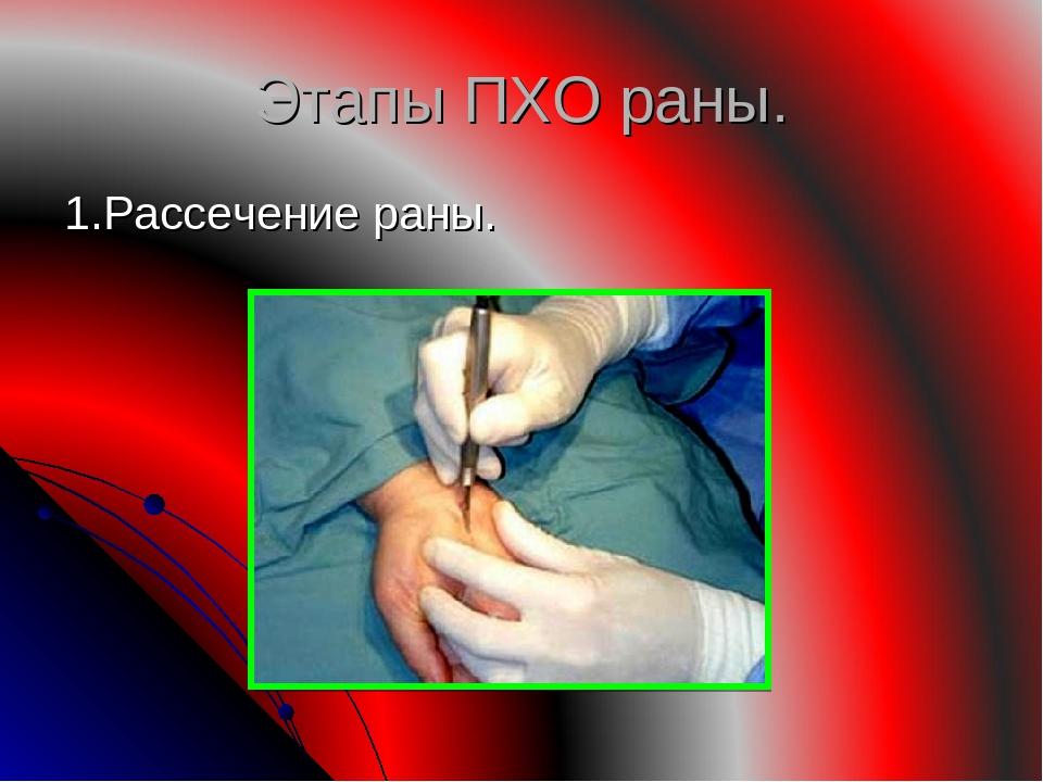 Этапы ПХО раны. 1.Рассечение раны.