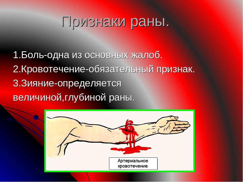 Признаки раны. 1.Боль-одна из основных жалоб. 2.Кровотечение-обязательный при...