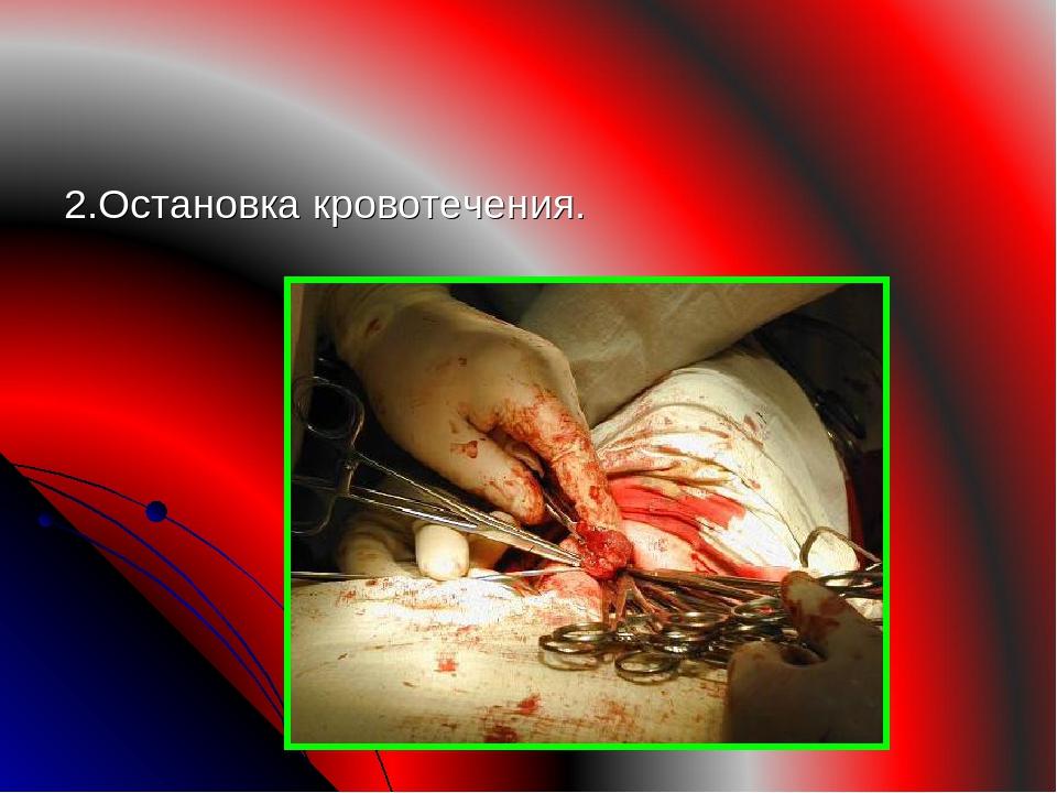 2.Остановка кровотечения.