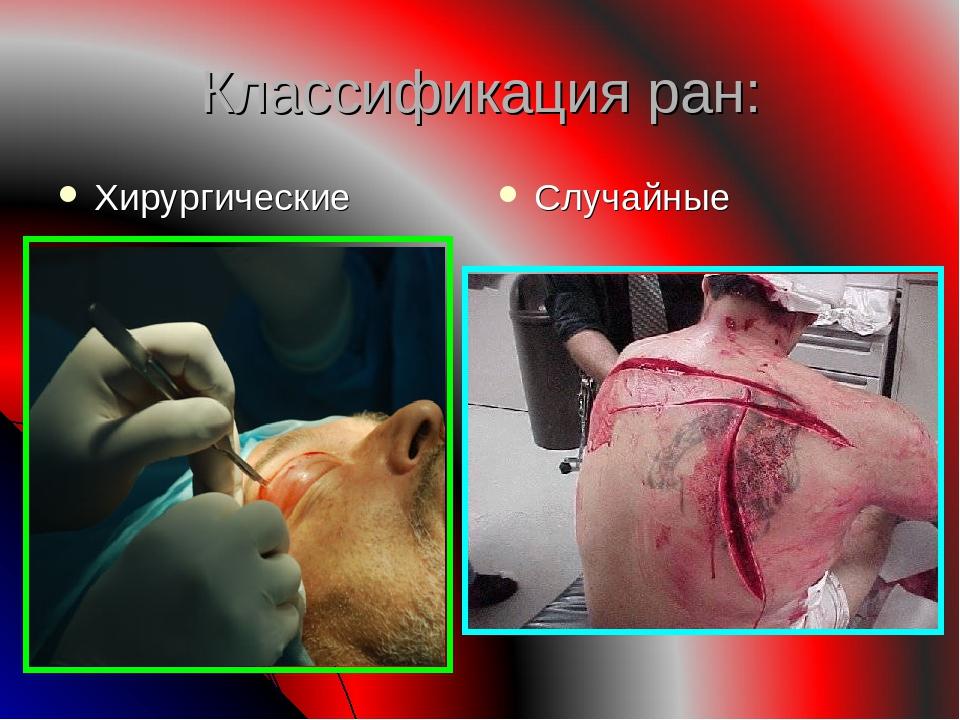 Классификация ран: Хирургические Случайные