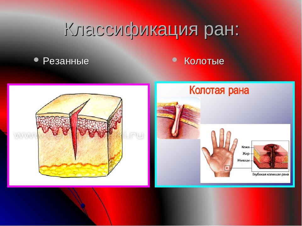 Классификация ран: Резанные Колотые