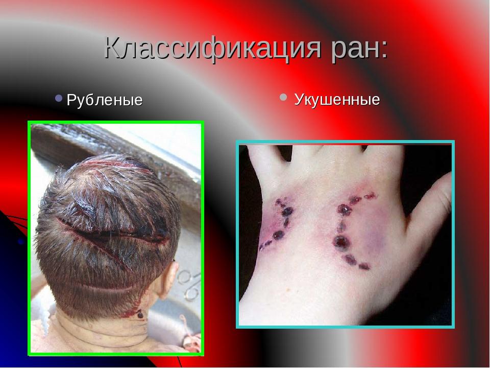 Классификация ран: Укушенные Рубленые