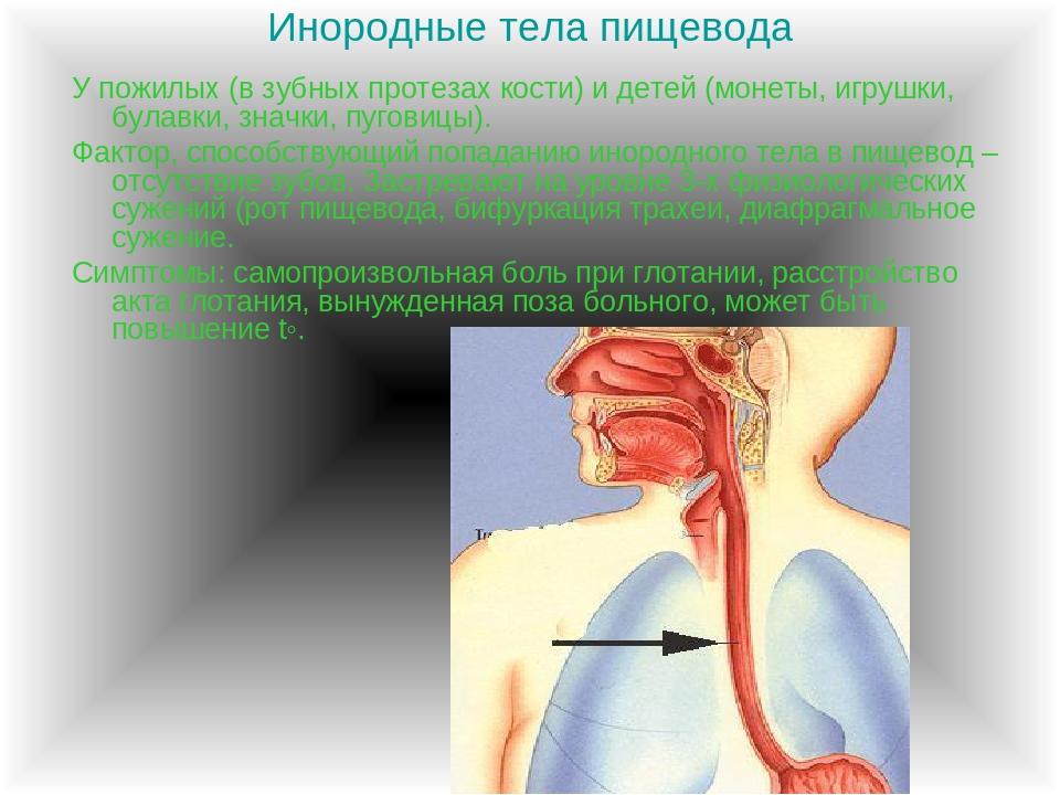 Молниеносный стеноз гортани при попадании инородного тела