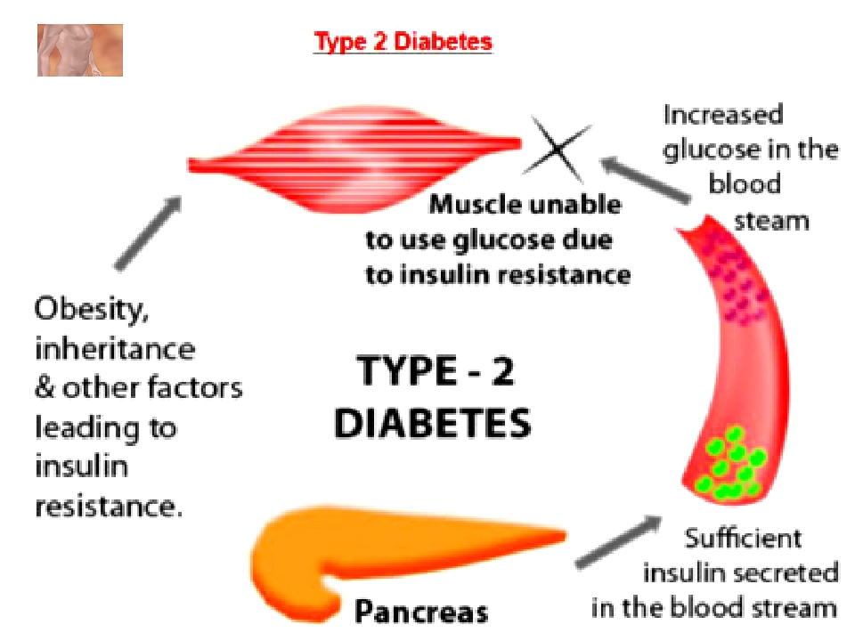 an overview of the diabetes in canadian medical research on insulin Diabetes mellitus type 1, also known as type 1 diabetes, is a form of diabetes mellitus in which very little or no insulin is produced by the pancreas before treatment this results in high blood sugar levels in the body.