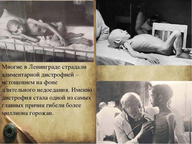 Многие в Ленинграде страдали алиментарной дистрофией – истощением на фоне дли...