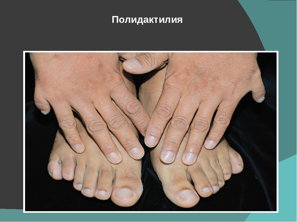 polydactyly a genetic disorder Polydactyly can occur spontaneously (familial polydactyly) or in conjunction with a number of genetic disorders asphyxiating thoracic dystrophy (jeune syndrome) is a bone growth disorder carpenter syndrome is an acrocephalopolysyndactyly (acps) disorder that affects bone growth.