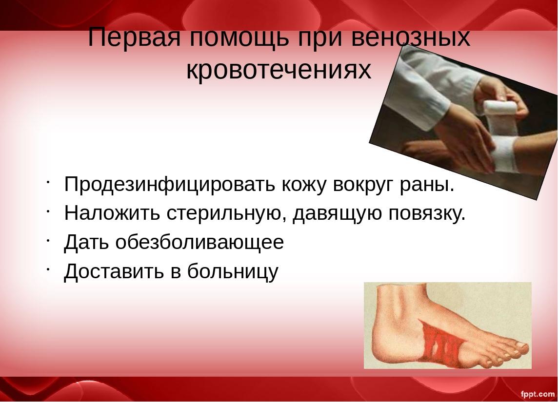 Картинка первая помощь при венозном кровотечении