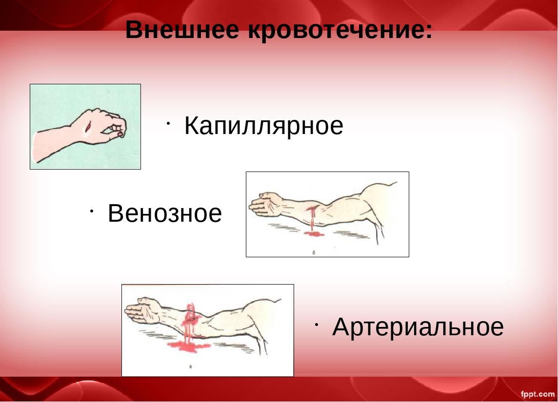 Картинка при артериальном кровотечении