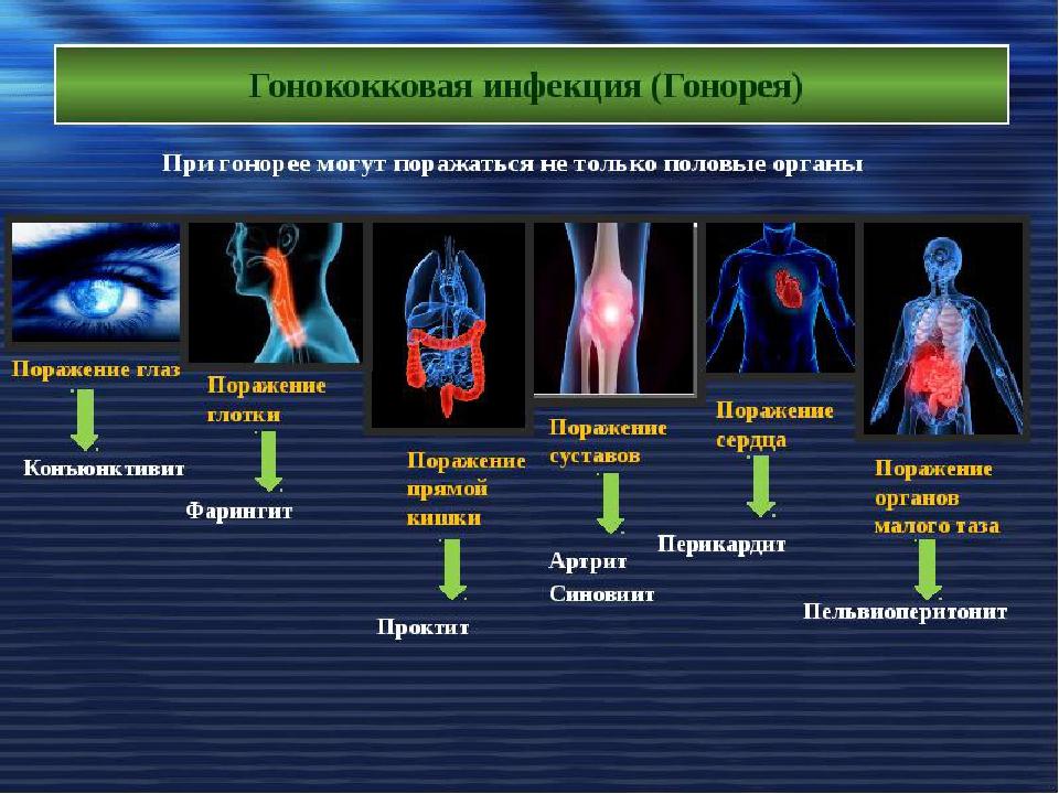 Энциклопедия на Клео - Комондор