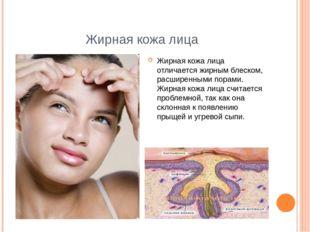 Жирная кожа лица Жирная кожа лица отличается жирным блеском, расширенными пор