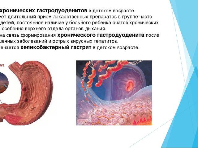Острый хронический гастродуоденит