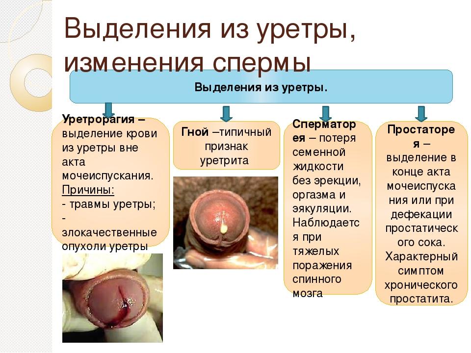 Выделения из уретры при дефекации простатита нет
