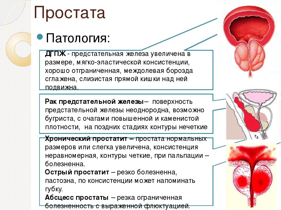 Какие стадии простатита простатит зуд