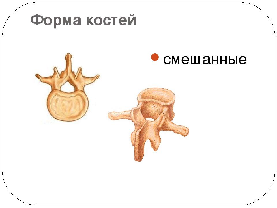 Форма костей смешанные