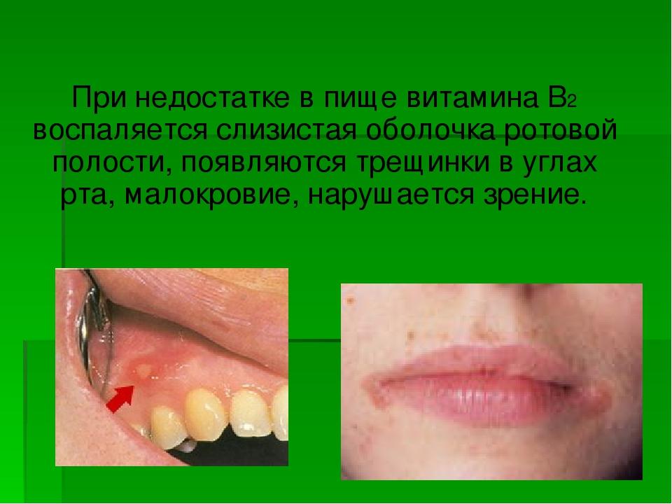 Заболевания слизистой оболочки полости рта фото