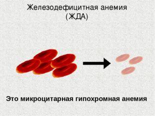 Железодефицитная анемия (ЖДА) Это микроцитарная гипохромная анемия