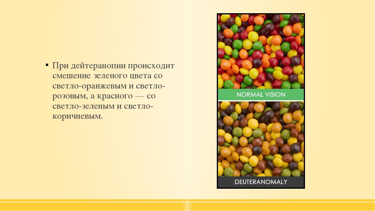 При дейтеранопии происходит смешение зеленого цвета со светло-оранжевым и св...