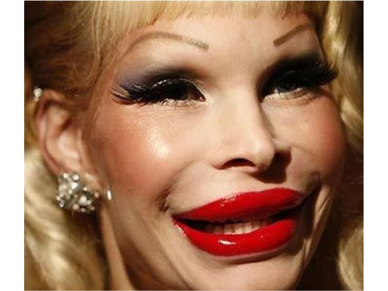Смотреть фото самых больших губ, Фотографии Девушки с большими размерами половых 13 фотография