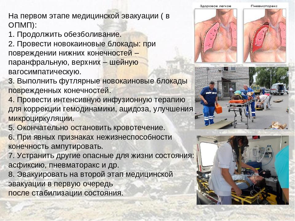 На первом этапе медицинской эвакуации ( в ОПМП): 1. Продолжить обезболивание....