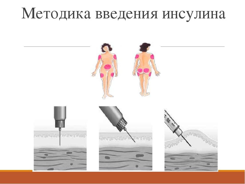 Картинки введения инсулина