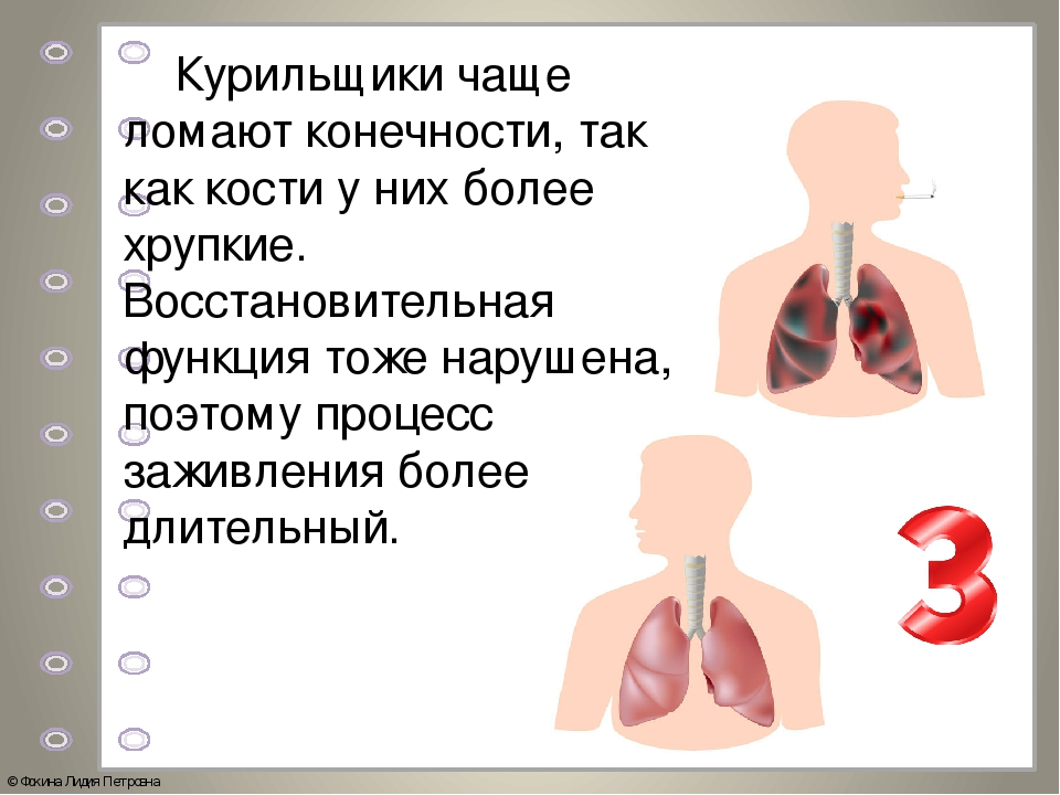 Курильщики чаще ломают конечности, так как кости у них более хрупкие. Восста...