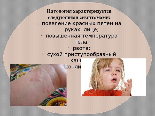 Патология характеризуется следующими симптомами: появление красных пятен на р...