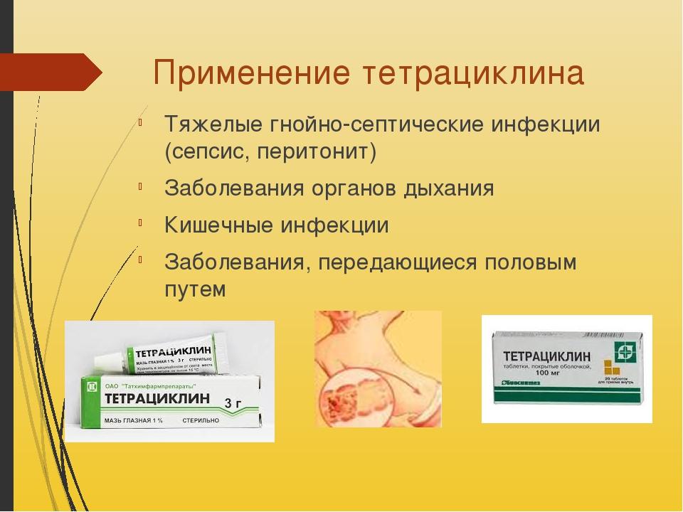 Применение тетрациклина Тяжелые гнойно-септические инфекции (сепсис, перитони...