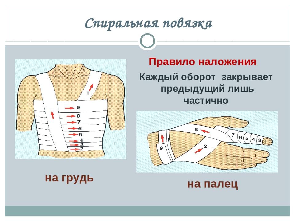 платье правила наложения повязок фото неприятности, которые выводят
