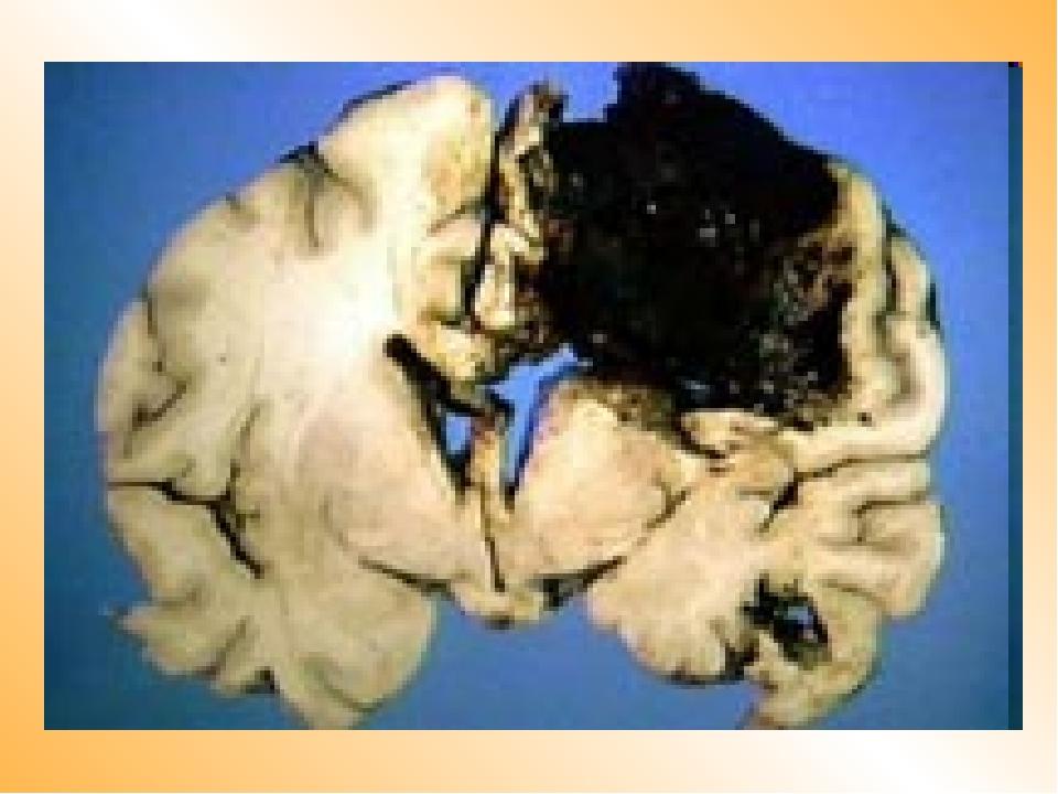 Клетки мозга восстанавливаются после алкоголя