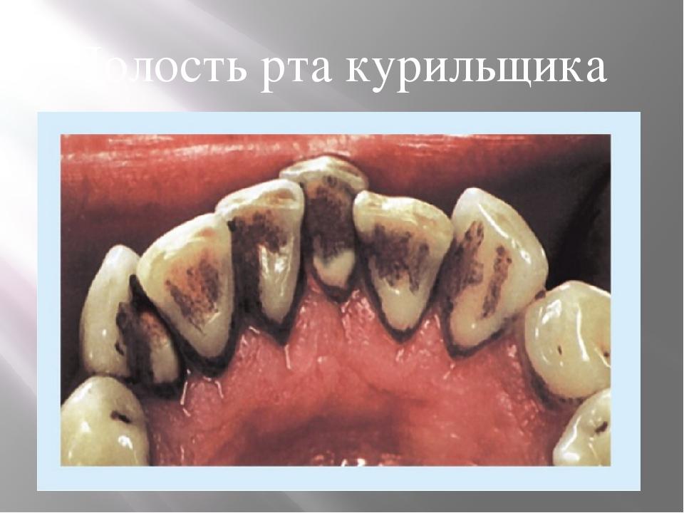 картинки зубы курящих масок крапивы