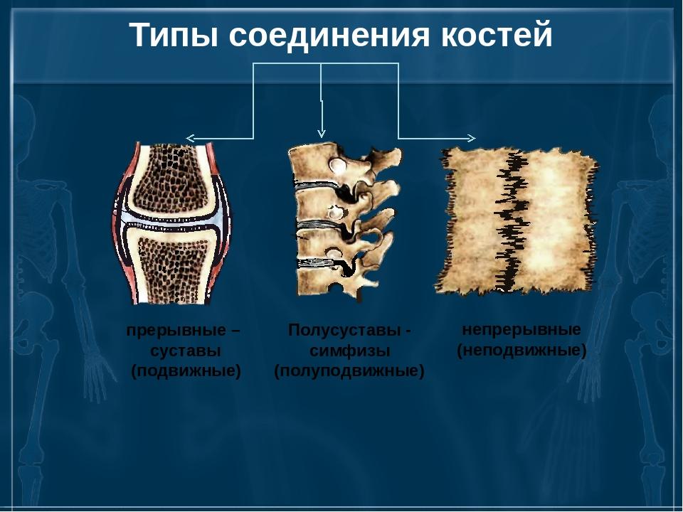 Типы соединения костей прерывные – суставы (подвижные) Полусуставы - симфизы...