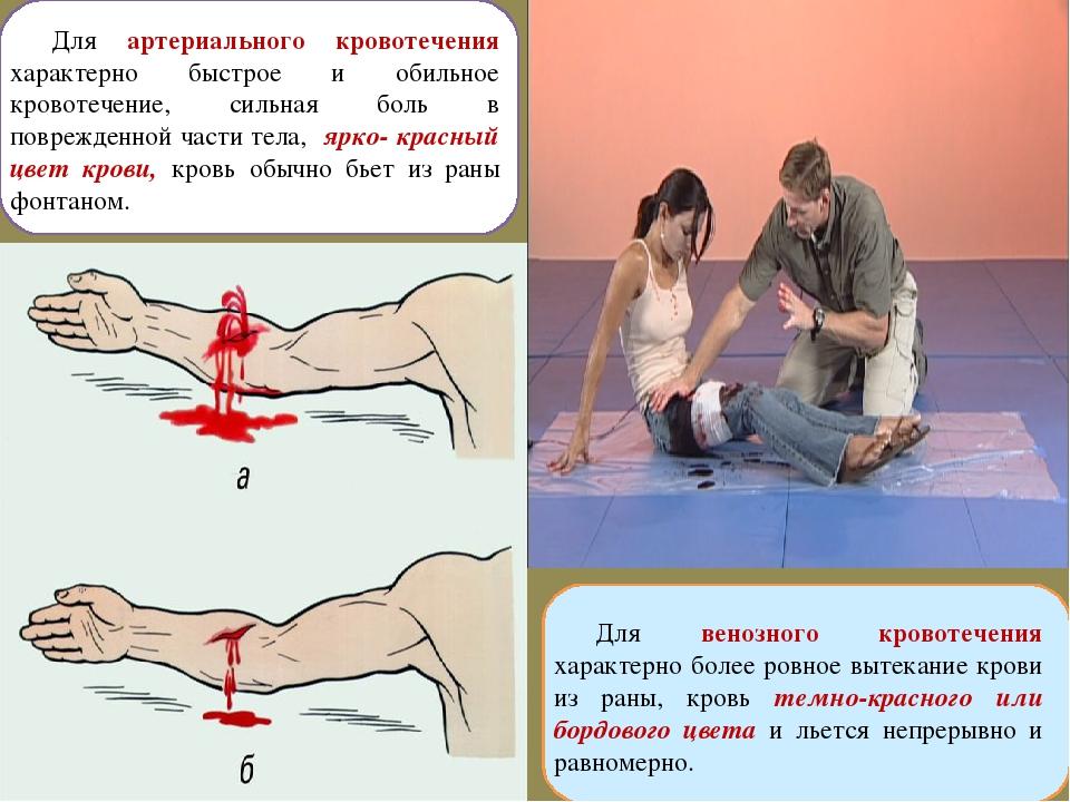 Для артериального кровотечения характерно быстрое и обильное кровотечение, си...