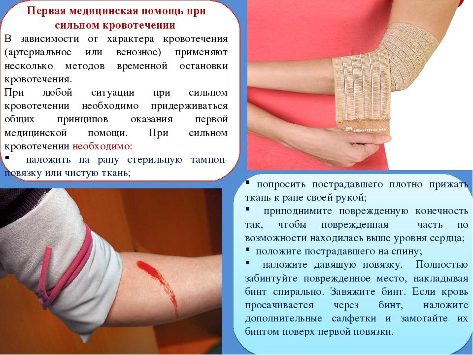 Первая медицинская помощь при сильном кровотечении В зависимости от характера...
