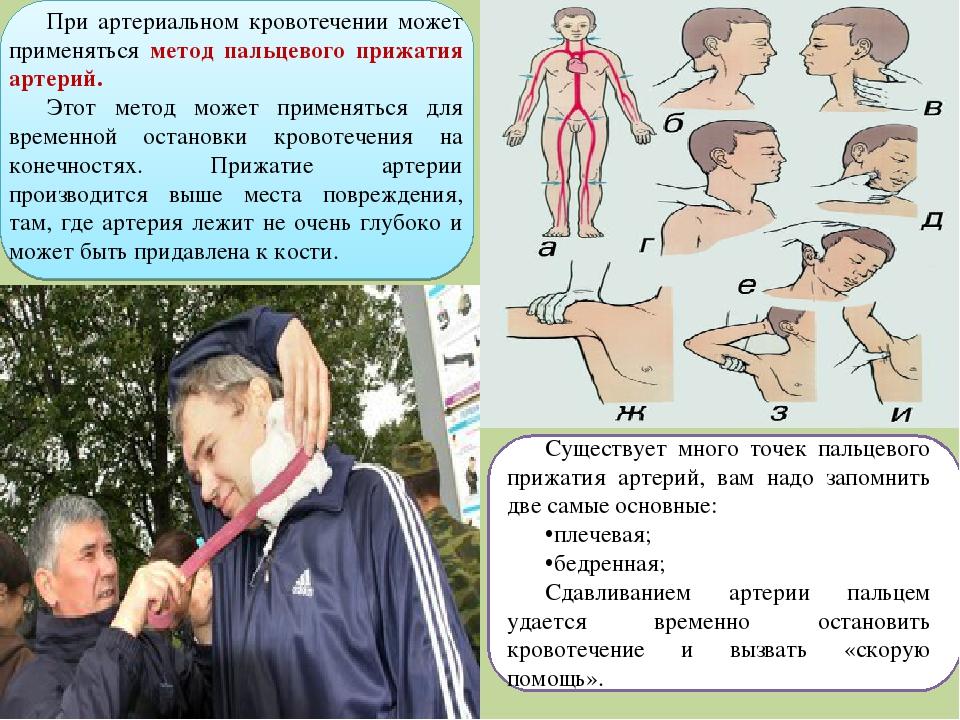 При артериальном кровотечении может применяться метод пальцевого прижатия арт...