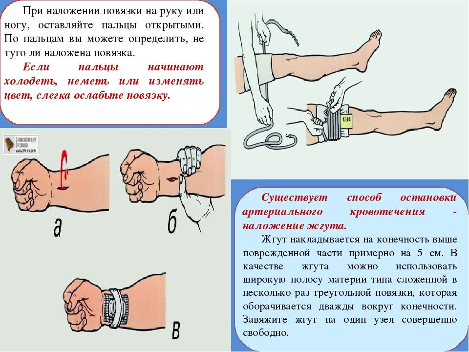 При наложении повязки на руку или ногу, оставляйте пальцы открытыми. По пальц...