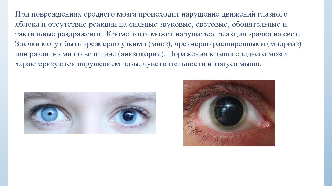 При сотрясении мозга двоится в глазах