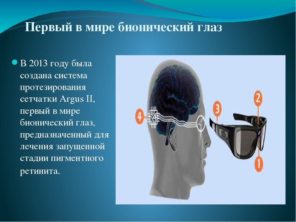 Первый в мире бионический глаз В 2013 году была создана система протезировани...