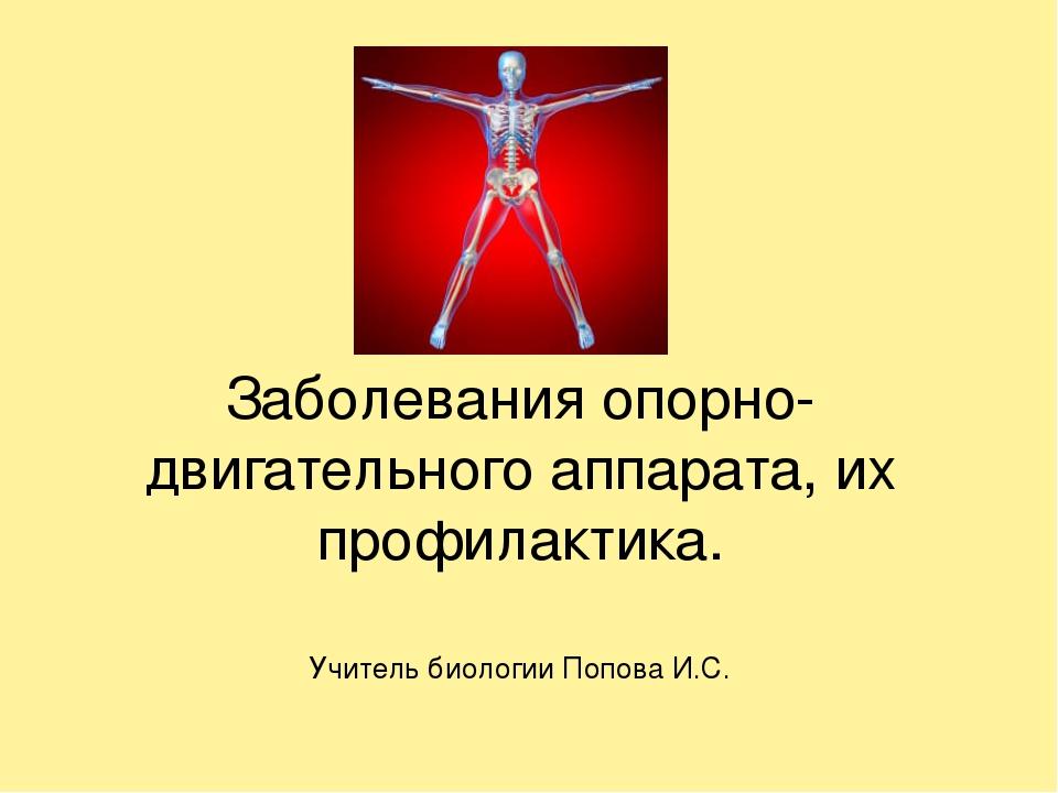 Заболевания опорно-двигательного аппарата, их профилактика. Учитель биологии...